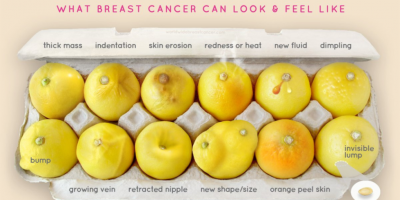 This Genius Photo Helps Simplify Breast Cancer Detection